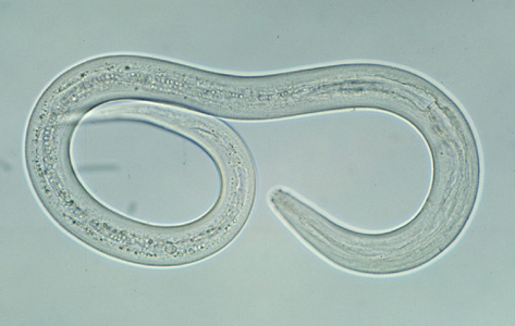 Hookworm larva - you really don't want to catch this one.